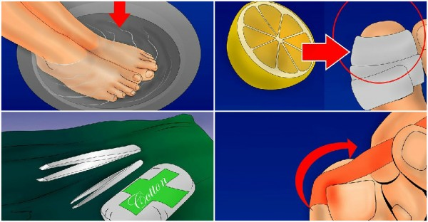 how to stop ingrown toenails at home