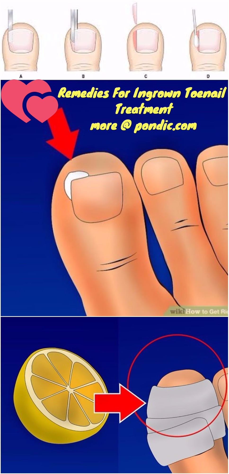 Remedies For Ingrown Toenail Treatment - Pondic